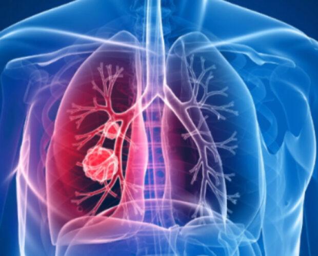 рак на бял дроб